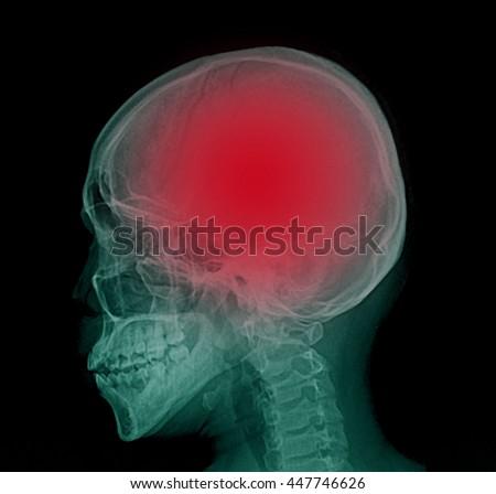 X-ray : Lateral skull - stock photo