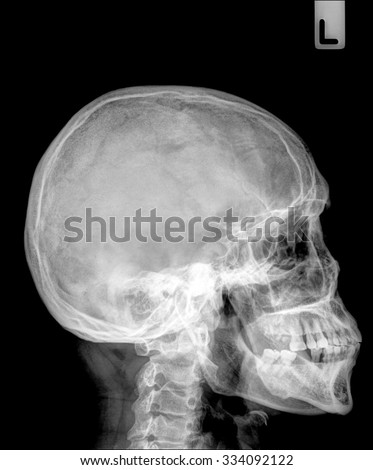 X-ray : Lateral skull , deformation of the jaw bone