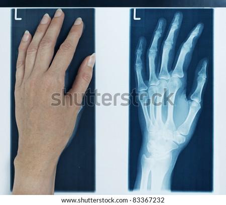 x-ray left hand - stock photo