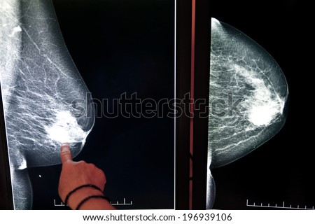 X-ray mammogram image of breast with cancer - stock photo
