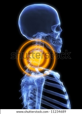 x-ray - neck inflammation - stock photo