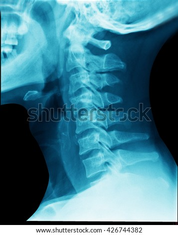 x-ray neck spine