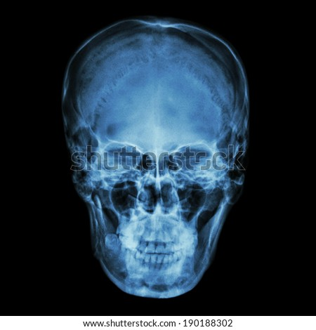 X-ray normal asian skull (Thai people) - stock photo