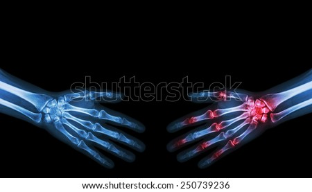 X-ray normal person is shaking hand with Arthritis hand person - stock photo