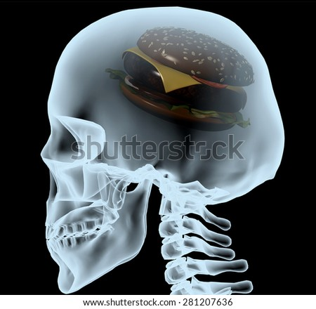 X-ray of a head with the burger instead of the brain, 3d illustration - stock photo