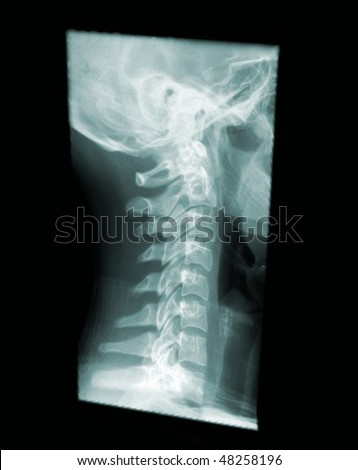 X-ray of a human cervical spine, side view, neck pain - stock photo