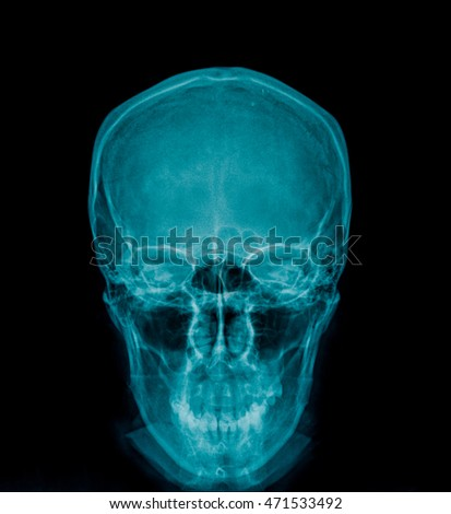 X-ray of a human skull, frontview on black background