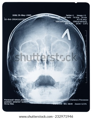 X-ray of a human skull, isolated on white background - stock photo