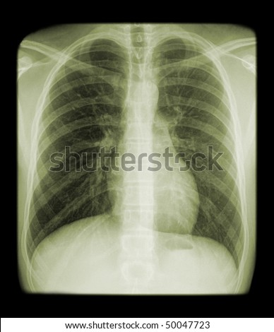x-ray of a thorax - stock photo