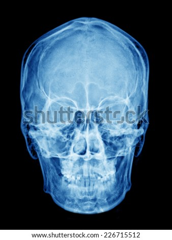 X-ray of asian skull