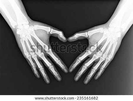 X-ray of both human hand - stock photo