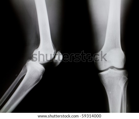 X-ray of both human knee (normal knee) - stock photo