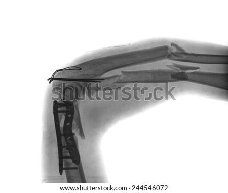 x ray of broken arm with screw - stock photo