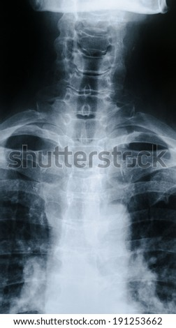 X-ray of cervicodorsal junction - stock photo