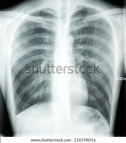 X-ray of chest - stock photo