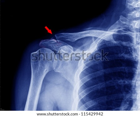 X- ray of collarbone