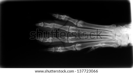 X-ray of dog foot - stock photo