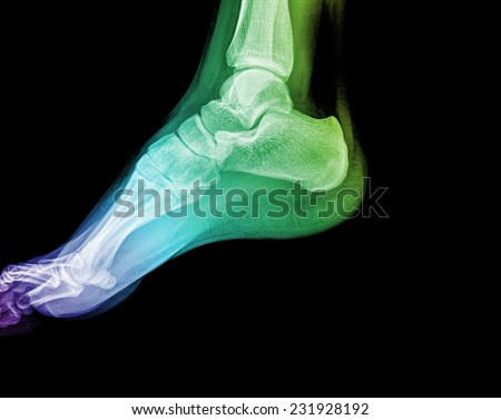 x-ray of foot - stock photo