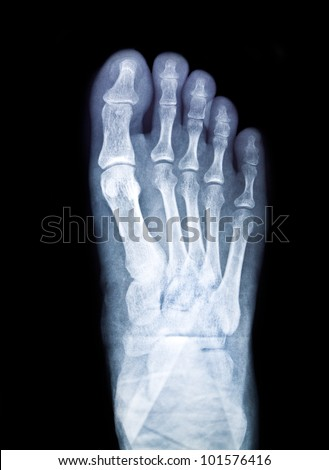x-ray of foot on black background - stock photo