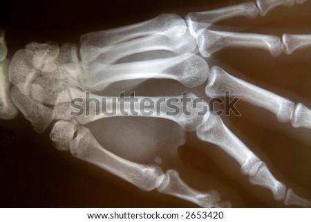 X-ray of hand - stock photo