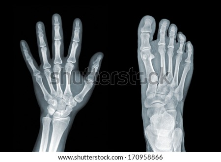 X-ray of hand and foot on black background - stock photo