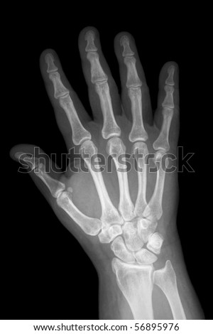 X-ray of hand in the anterior posterior position
