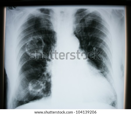 X-ray of human lungs - stock photo
