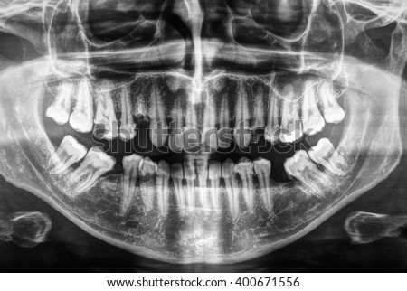 X ray of human mouth with teeth bones in black and white  - stock photo