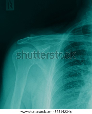 X-ray of human shoulder - stock photo
