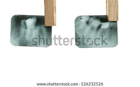 X-ray of human teeth on light background - stock photo