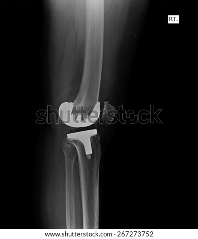 X-Ray of knee joint / Advanced osteoarthritis.