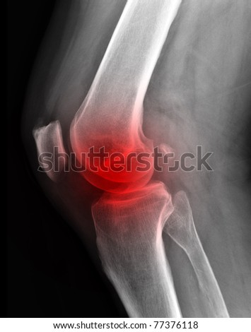 X-ray of painful knee  / Many others X-ray images in my portfolio. - stock photo