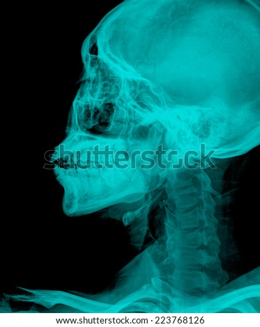 x ray of painful neck - stock photo