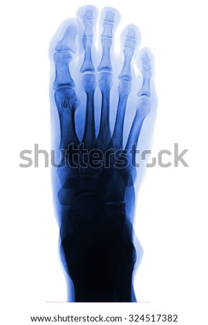 X-ray of right human foot AP view foot on white background. - stock photo