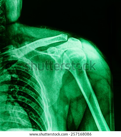X-ray of shoulder joint / Many others X-ray images in my portfolio. - stock photo