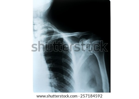 X-ray of shoulder joint  on white background - stock photo