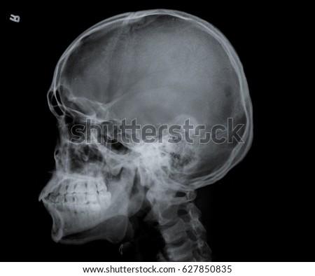 X Ray Skull Side