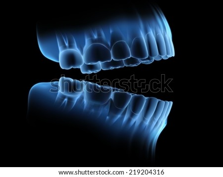 X-ray of teeth. Use 3d rendering. - stock photo