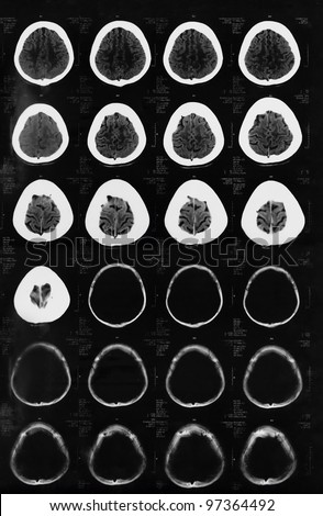 X-ray of the brain computed tomography - stock photo