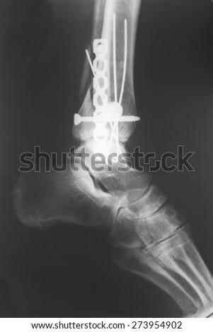 X-ray of the broken leg - stock photo