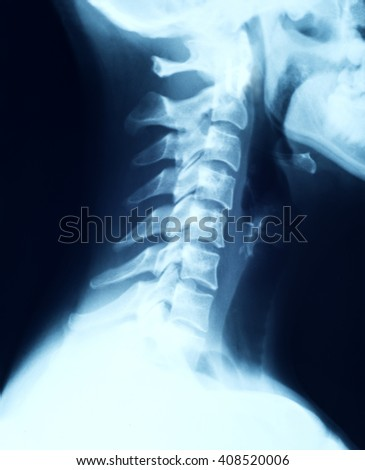 x-ray of the cervical spine  - stock photo