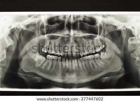 X-ray of the human jaw - stock photo