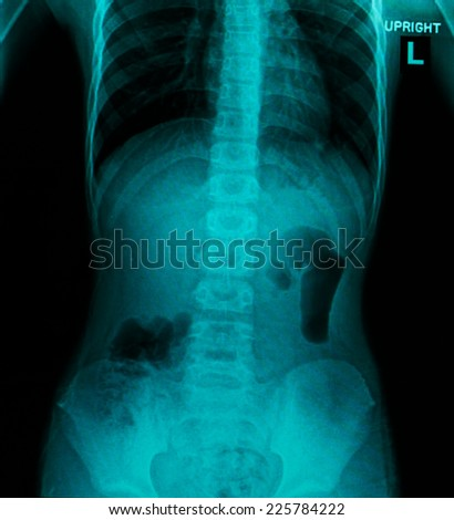 X-ray of the pelvis and spinal column - Reno bladder