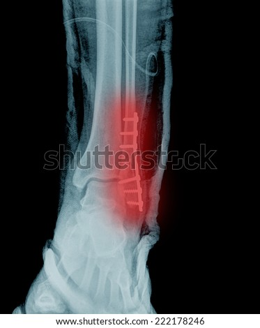 x ray painful ankle - stock photo