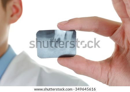 X-ray periodontitis tooth. Dentist holding a picture of a sick tooth - stock photo
