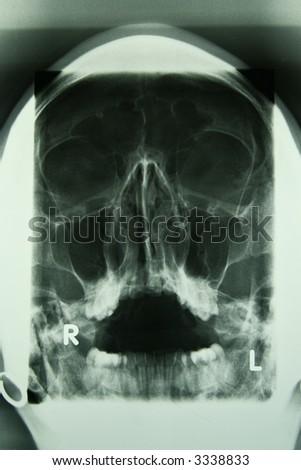 x-ray photo of a human skull - stock photo