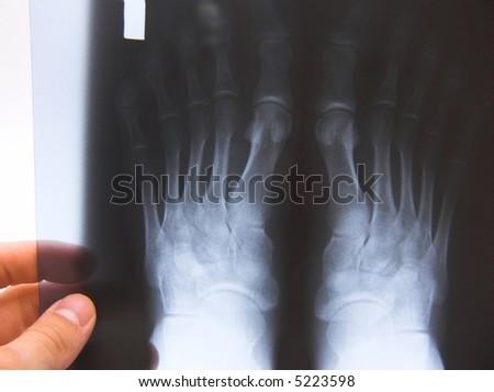 x-ray photo of feets - stock photo
