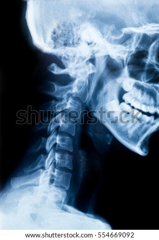 X-Ray photo of neck and skull.