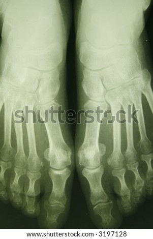 x-ray photo of person feet - stock photo
