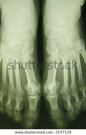 x-ray photo of person feet - stock photo